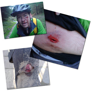 mountain-bike-injuries